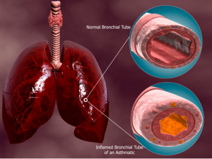 Colorado Allergy helps patients with COPD/Bronchitis