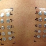 Colorado Allergy patch test