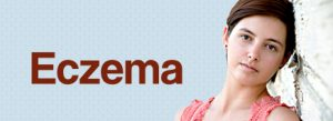 Could this rash be eczema? - Colorado Allergy & Asthma Centers, P.C.