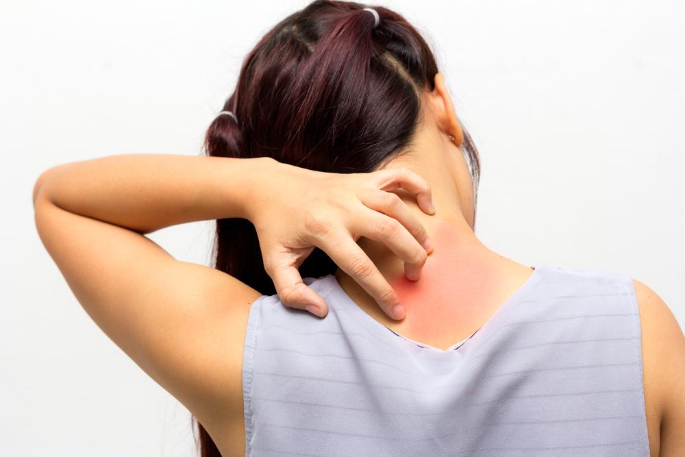 skin scratch